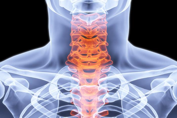 douleurs aux cervicales